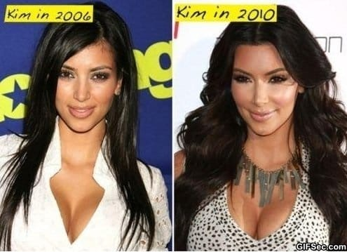 KIM KARDASHIAN PLASTIC SURGERY FAIL OR WIN