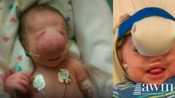 disfigured baby can finally see mom