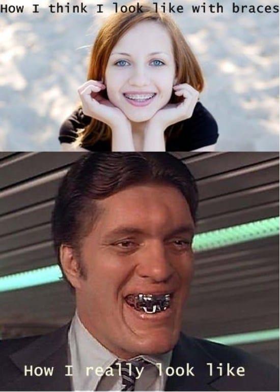 how-i-think-i-look-like-with-braces-expectation-vs-reality